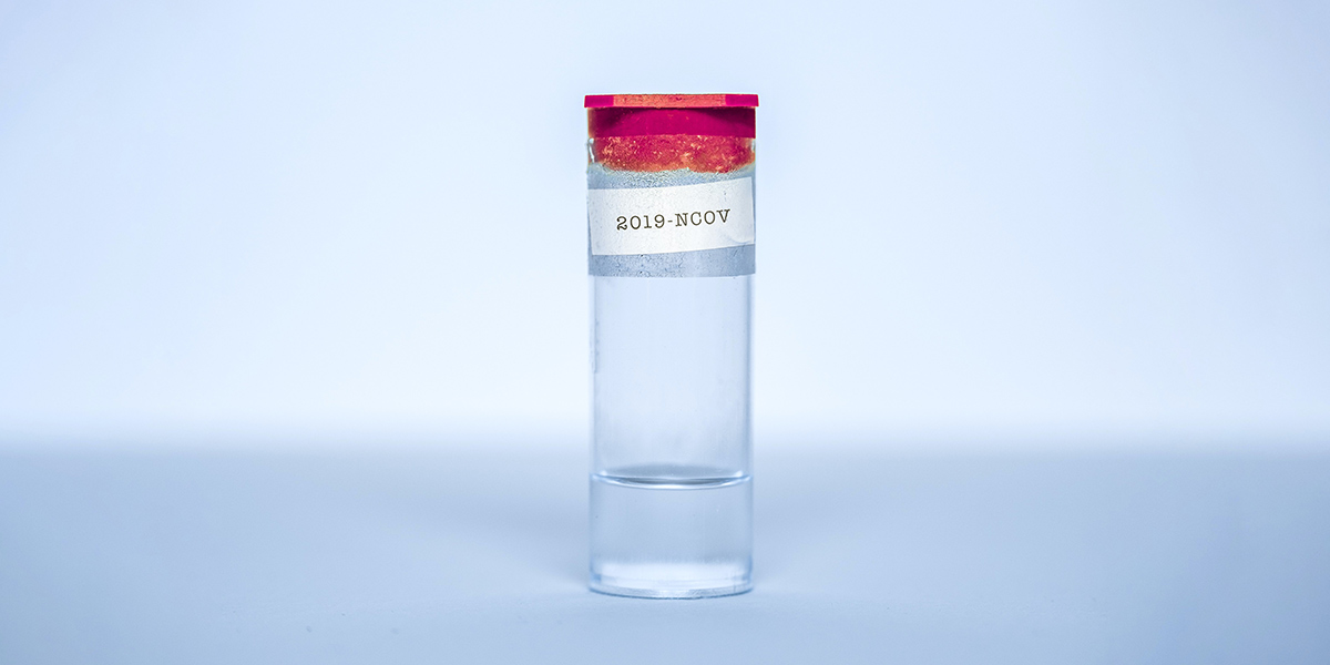Covid19 sample